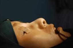 鼻综合手术是怎么做的 鼻综合手术过程图解析