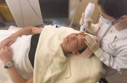 热玛吉多久可以见效 紧肤术后2-4个月会明显见效