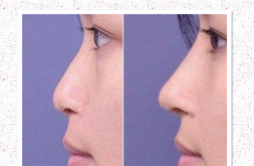 耳软骨垫鼻尖的作用 耳软骨垫鼻尖三个用处你知道几个