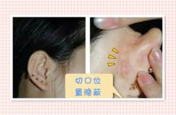 耳软骨垫鼻尖后遗症 医生可能不会告诉你的秘密