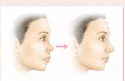 耳软骨垫鼻尖会歪吗 注意3点鼻尖不歪斜和移位