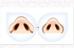 缩鼻翼手术是终身的么 一生保持效果无需担忧