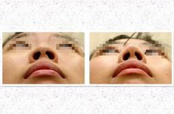 鼻翼缩小多久拆线 正确护理缩短拆线间隔时间