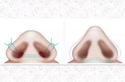 缩鼻翼后用嘴巴呼吸吗 鼻翼缩小是否影响正常呼吸